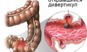 Дивертикул прямой кишки у человека