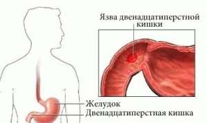 Симптомы и лечение прободной (перфоративной) язвы двенадцатиперстной кишки