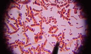Смекта при дисбактериозе