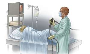 Мониторная очистка кишечника