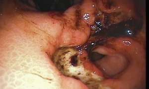 Распространение язвенной болезни желудка и 12-перстной кишки
