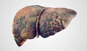 Гепатит: симптомы, причины, лечение