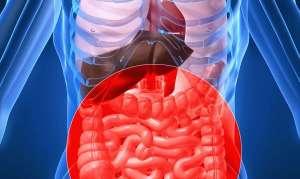 Хронический дисбактериоз кишечника