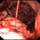 Первая помощь и лечение при кровотечении из-за язвы желудка