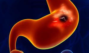 Код язвенной болезни желудка по МКБ-10