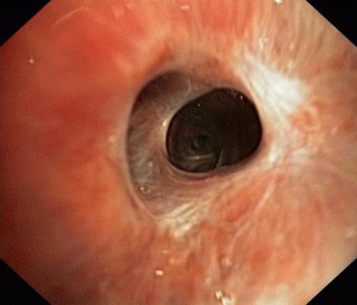 Язвенная болезнь желудка и 12-перстной кишки лечение