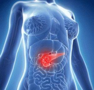 Развитие панкреатита у больного