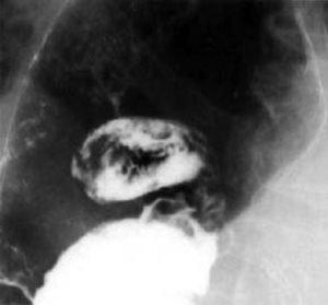 Перфорация язвенной болезни