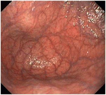 Как лечить хронический атрофический гастрит желудка