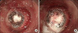 Некротический гастрит желудка