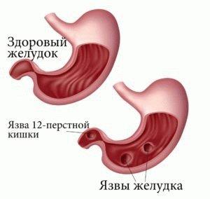 Здоровый и больной желудки