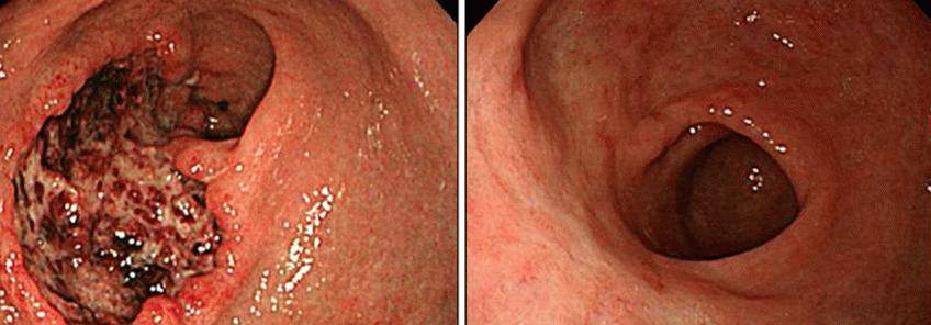 Обострение язвы 12-перстной кишки: симптомы и лечение