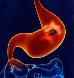 Развивающаяся язва желудка