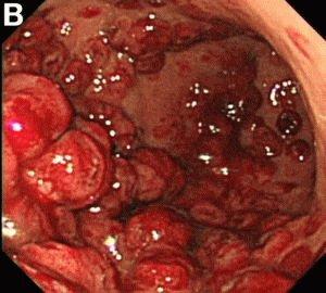 Кровотечение в желудке при язве
