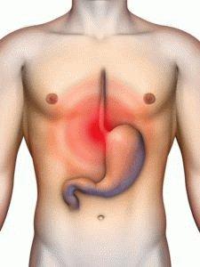 Выражение язвенной болезни