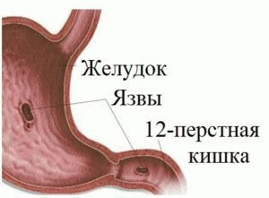 Поражение внутри желудка и кишки