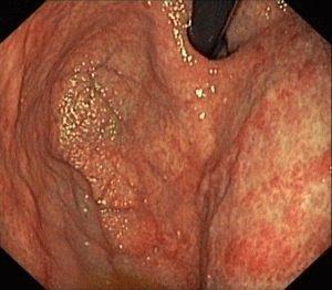Атрофия клеток желудка