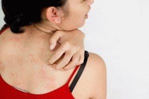 Аллергия на лекарство