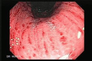 Болезнь гастрит желудка