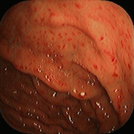 Что такое инфекционный гастрит и как его лечить?