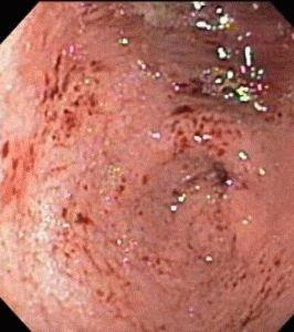 Вирусный гастрит