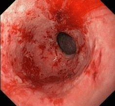 Эрозивное воспаление желудка
