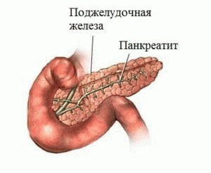 Болезнь панкреатит