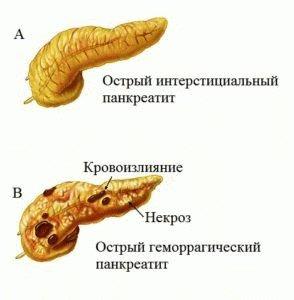 Панкреатит острого типа