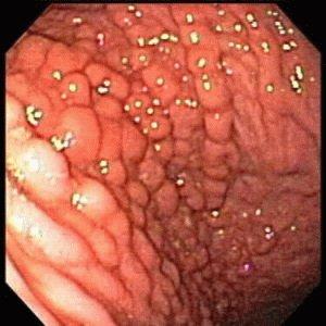 Желудок больного гастритом