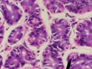 Клеточная проба из желудка