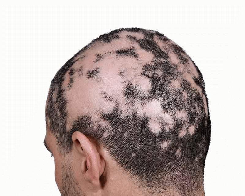 Slaba kosa u trudnoći