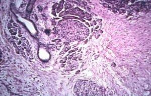 Гистология при панкреатите