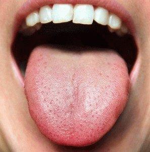 Горечь во рту при панкреатите лечение