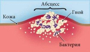 Абсцессы в организме