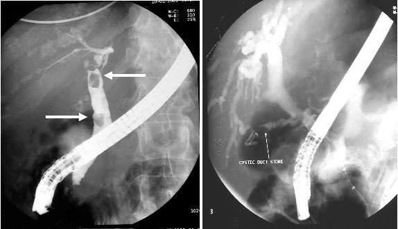 Камни в поджелудочной железе: симптомы и лечение
