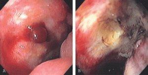 Некроз стенок желудка и 12-перстной кишки