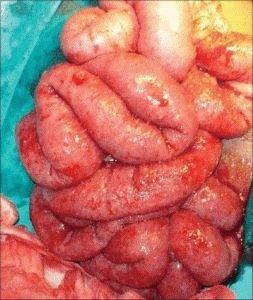 Туберкулёз в кишечнике