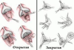 Геморроидэктомия открытым способом