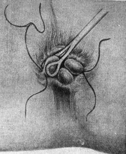 Вправление геморроидального узла