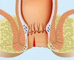 Трещины в анальном проходе