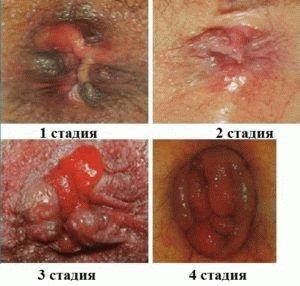 Степени заболевания