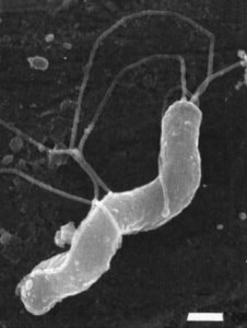 Спиралевидный микроб