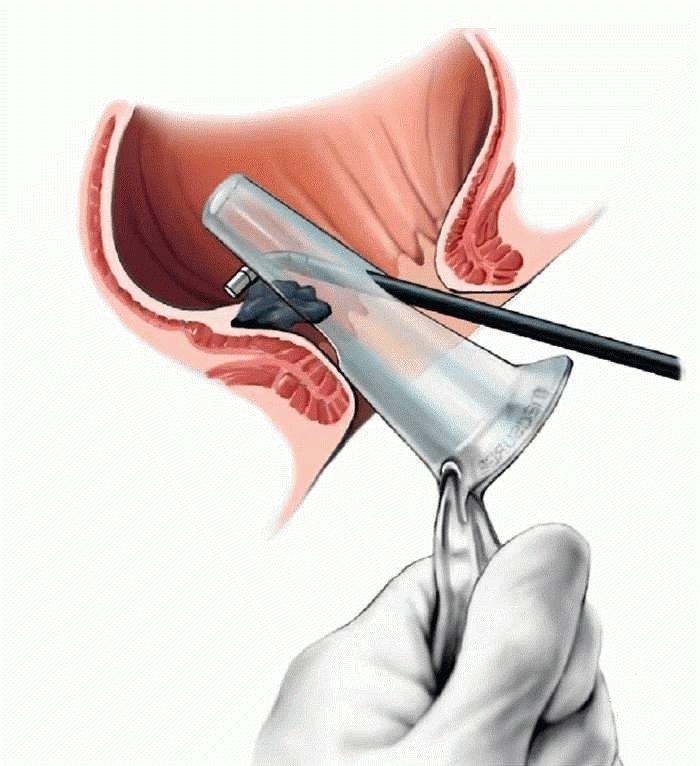 Склерозирование геморроидальных узлов: цена, отзывы, техника проведения