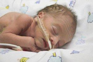 Кишечная палочка у новорождённого