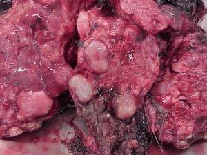 Заболевание Echinococcosis