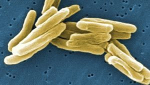 Вирус туберкулёза