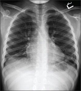 Рентген ребёнку