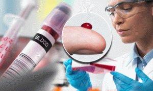 Анализ крови человека