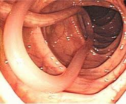 Болезнь энтеробиоз