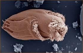 Патогенные микроорганизмы у человека